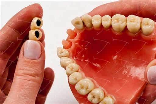 Armed Provisional  Traditional  Bridges and Crowns Cast Fusion with Locking in Resina cemented on the Natural Posts