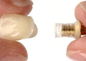 Bridges and Crowns in Zirconium and Ceramics cemented  on the Metal-based Castable Abutments