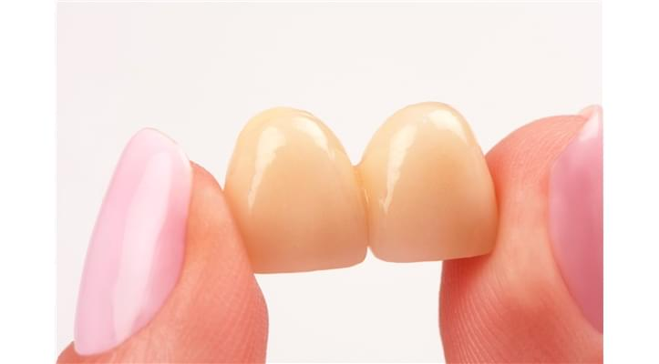 Provisional Traditional Bridges and Crowns Cast Fusion armored with cemented resin closure on natural molds