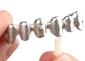 Toronto Implant Bridge cemented on the Integral Castable Abutments