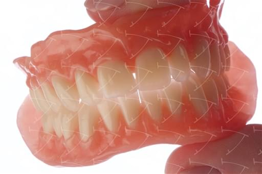 Total Prothesis in Acrylic  Resin with Teeth made of …  con denti del commercio in ceramica abbottonata su denti naturali