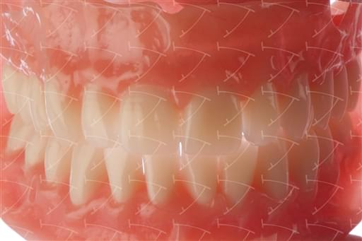Total Prothesis in Acrylic  Resin with Teeth made of … con denti del commercio in ceramica abbottonata su impianti