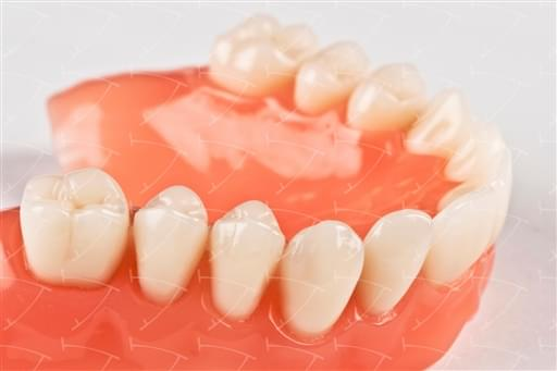 Total Prothesis in Acrylic  Resin with Teeth made of ... con denti del commercio in ceramica
