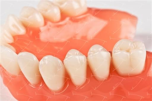 Total Prothesis in Acrylic  Resin with Teeth made of …con denti del commercio in ceramica