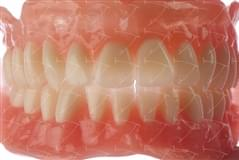 Total Prothesis in Acrylic  Resin with Teeth made of ... con denti del commercio in resina acrilica