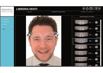 Digital Smile System (3)