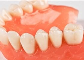 Protesi totale in resina acrilica con denti del commercio in ceramica