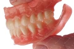 Protesi totale in resina acrilica con denti del commercio in composito abbottonata su denti naturali