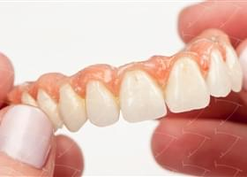 Toronto implant Bridge in cromo cobalto e ceramica avvitate