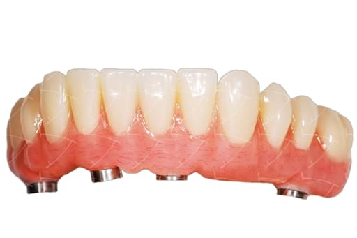 Toronto Implant Bridge in resina acrilica con rinforzo metallico